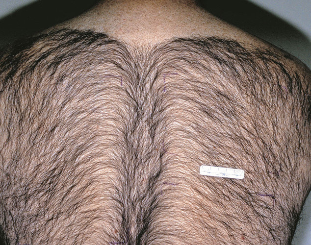 hair_removal_back_before