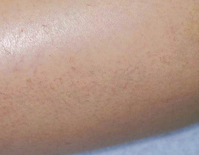 hair_removal_leg_before