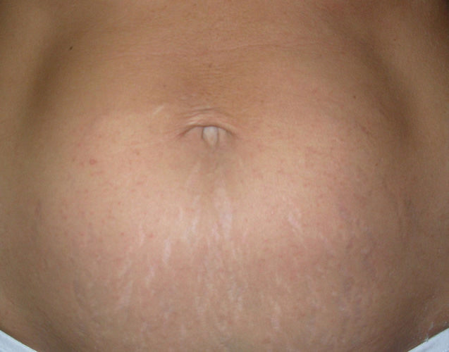stretch_mark_removal_stomach_2_after