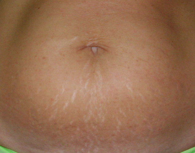 stretch_mark_removal_stomach_2_before