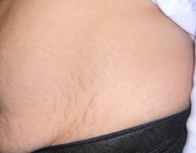 stretch_mark_removal_stomach_before