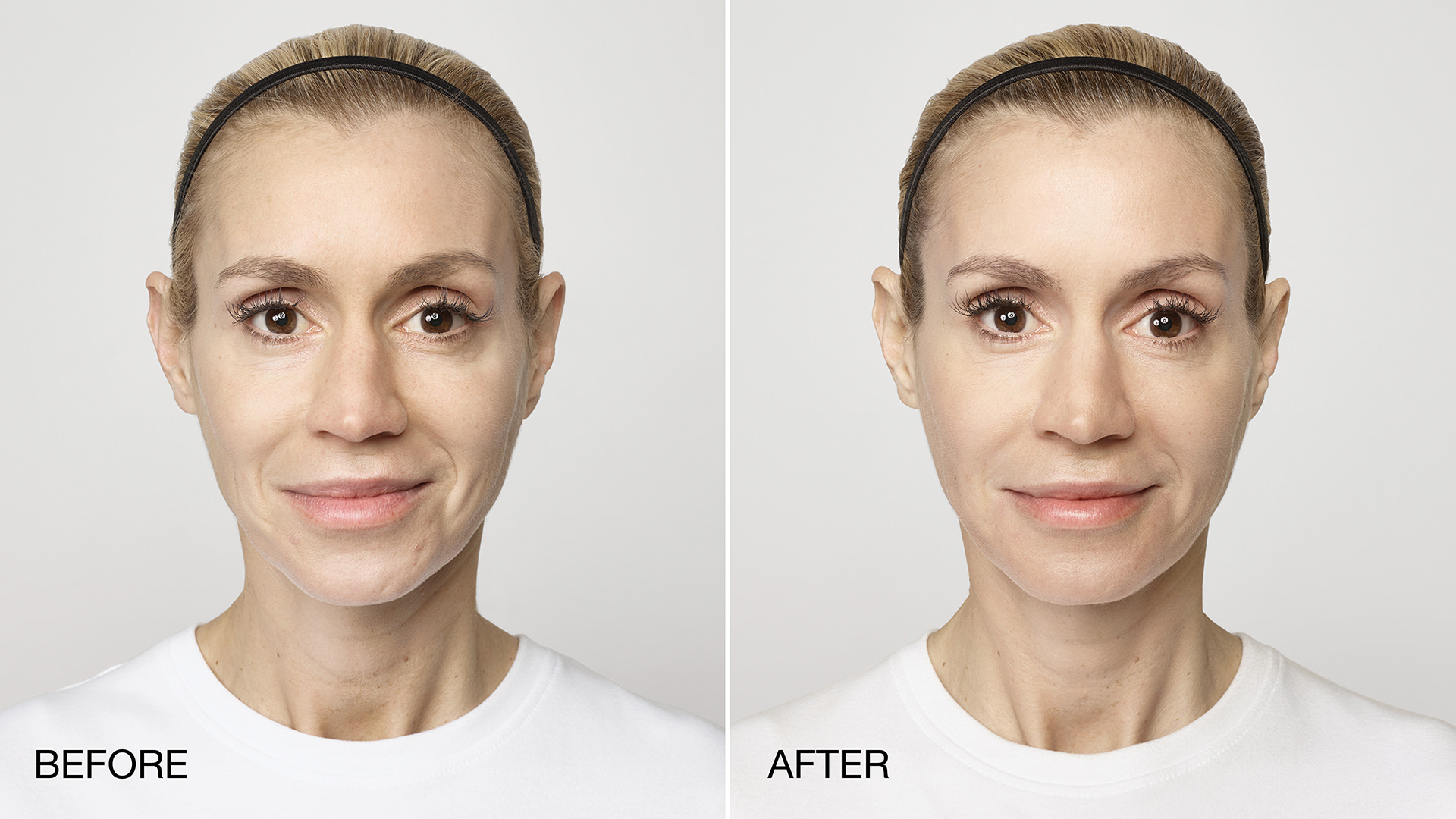 Restylane-Lyft-Before-and-After_1