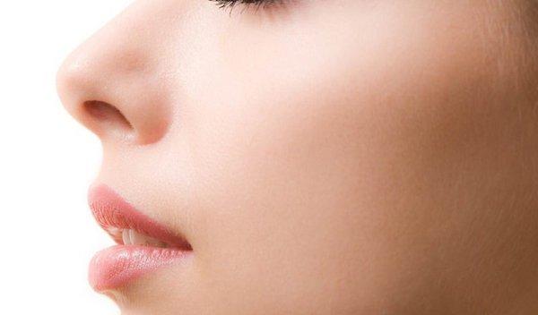 restylane-lyft-cheeks